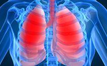 Психосоматические причины болезней легких. Пневмония, кашель, туберкулез, бронхит, астма.